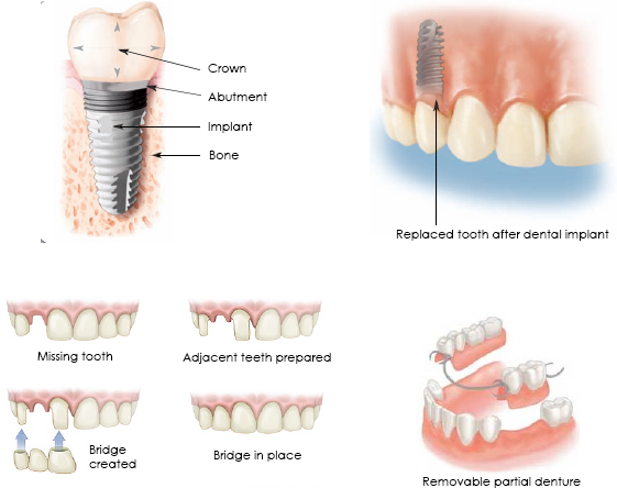 Can all teeth be treated with endodontics?