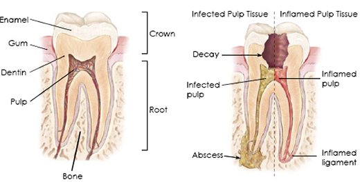 how-root-canal